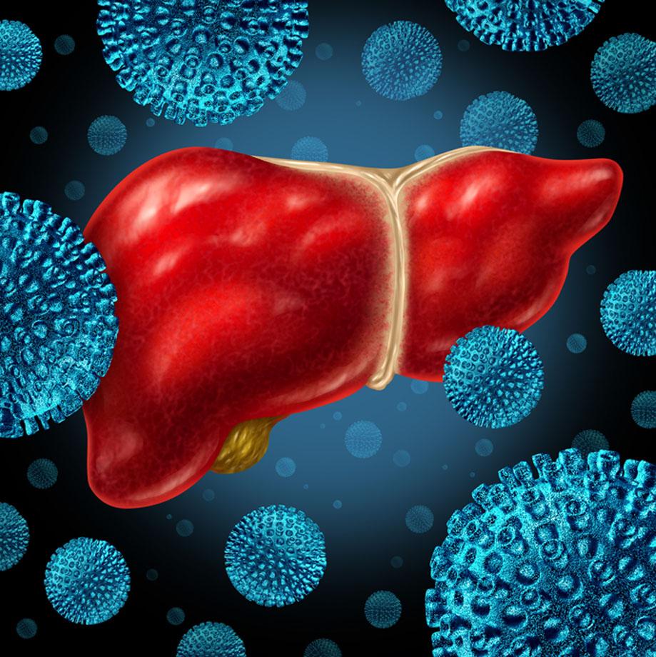 L'hépatite : une maladie silencieuse