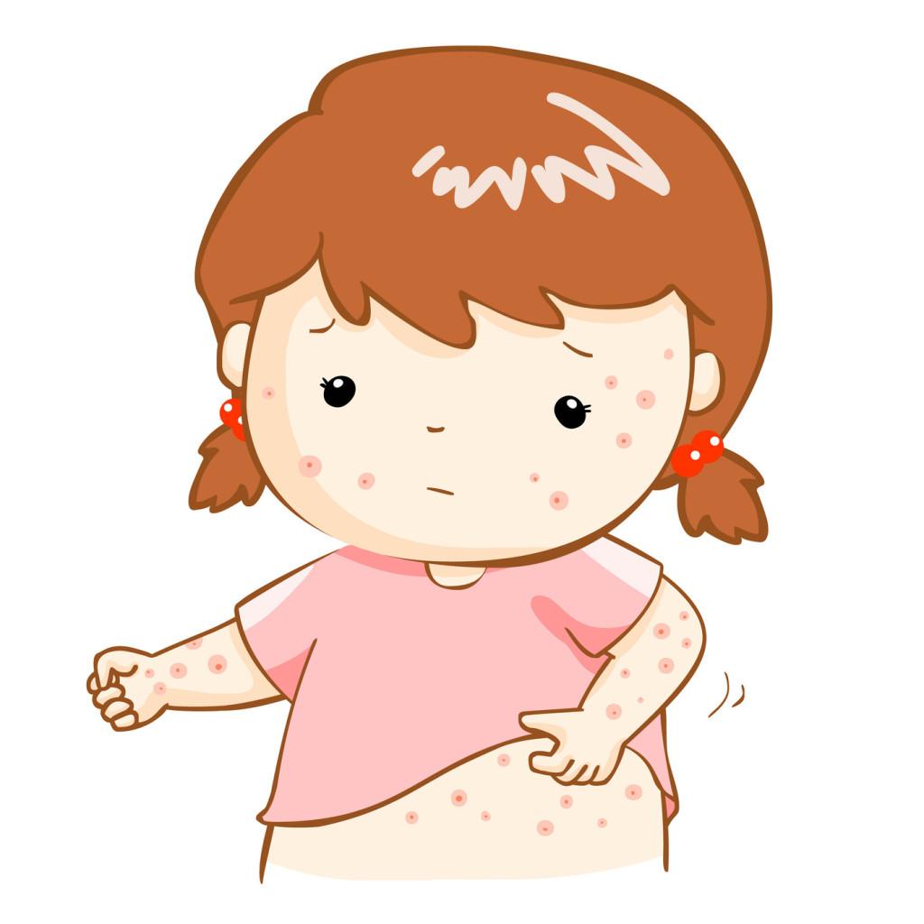 Varicelle : quand la peau démange sans cesse