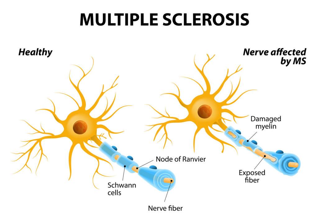 Sclérose en plaques et virus d'Epstein-Barr