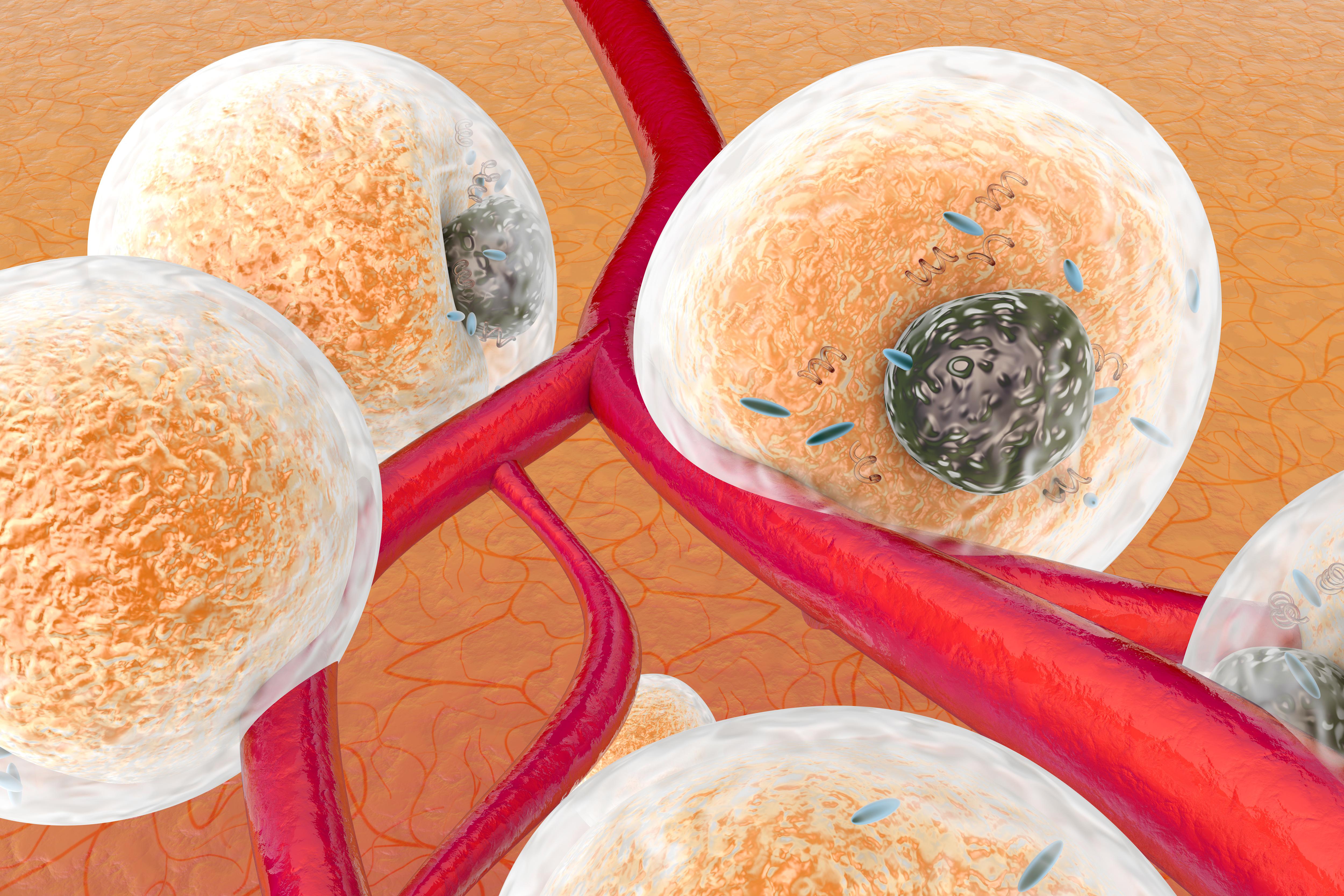 Inflammation et métabolisme