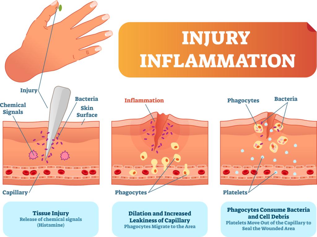 Rappel sur les différents types d'inflammation et les pathologies associées