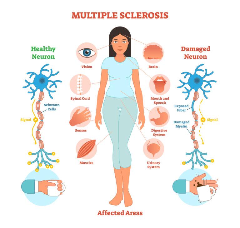 Sclérose en plaques, une maladie du système nerveux